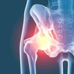 Tendinites de la hanche - Labrha