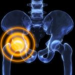 Anatomie de l'arthrose - Labrha